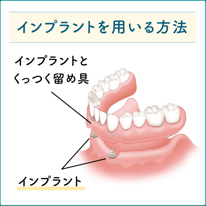インプラントを用いた入れ歯