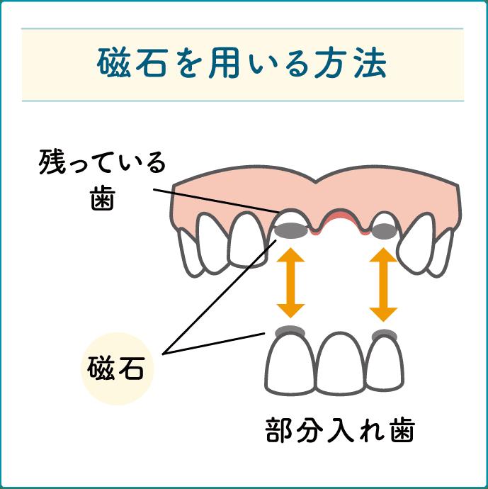 磁石を用いた入れ歯