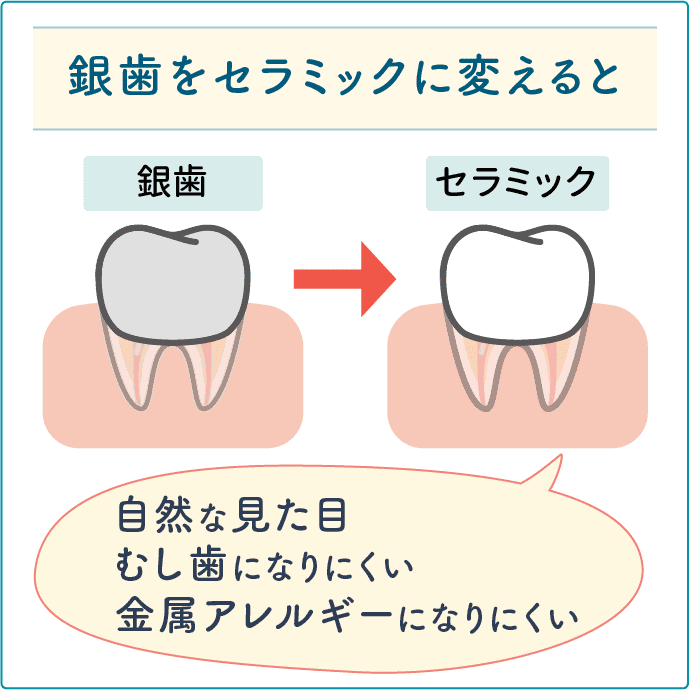 セラミックの歯に変える