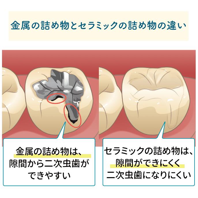 2次むし歯