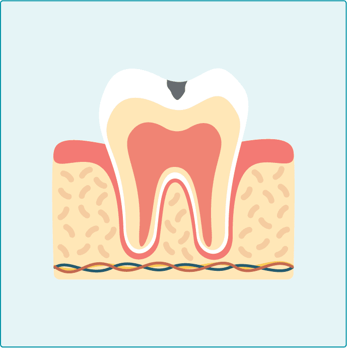初期むし歯c1