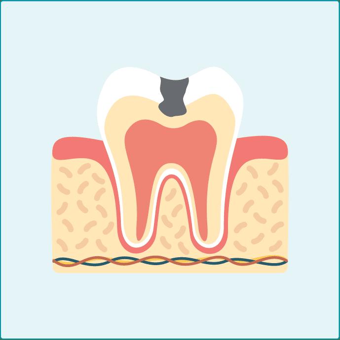 中くらいのむし歯c2