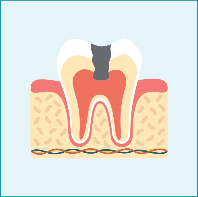 大きいむし歯c3
