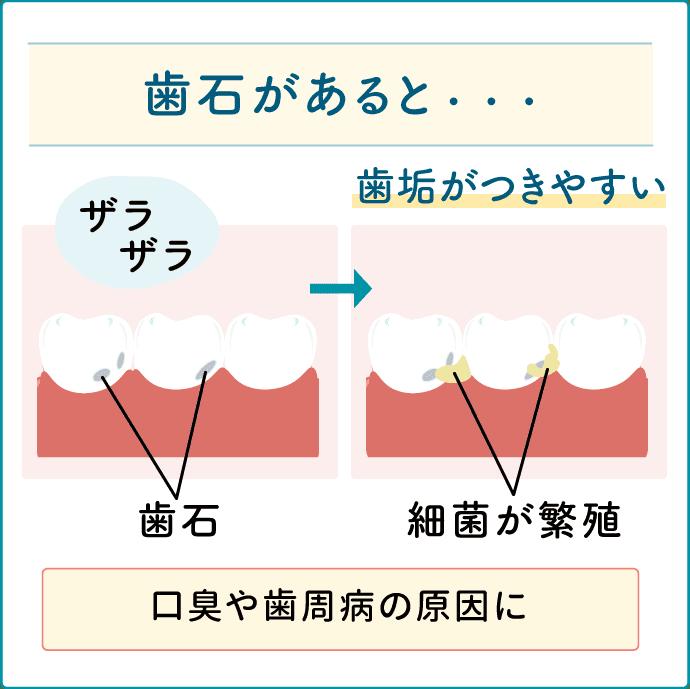 歯石 口臭や歯周病の原因に
