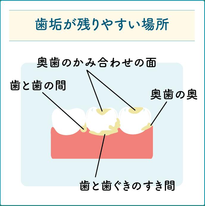 歯垢が残りやすい場所