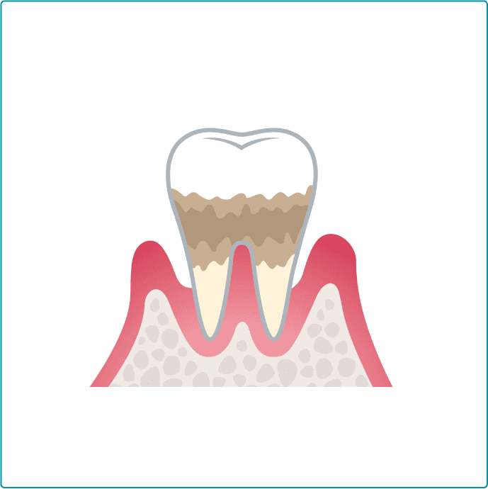 歯周病中度