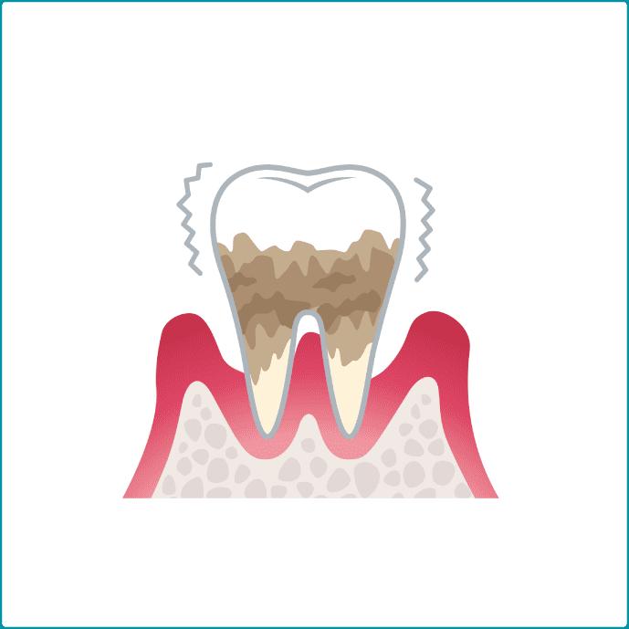 歯周病重度