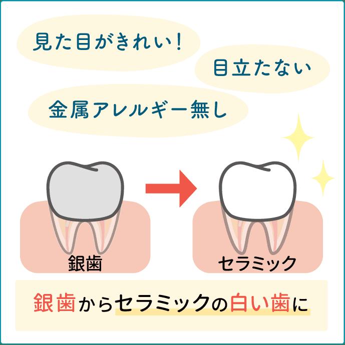 銀歯からセラミックの白い歯に
