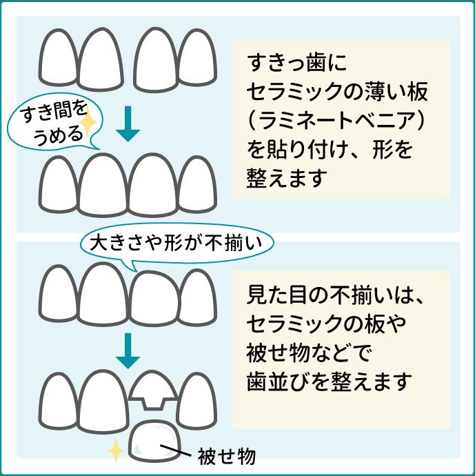 すきっ歯や八重歯などきれいに