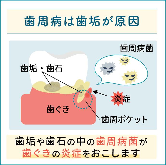 歯周病の原因は歯垢